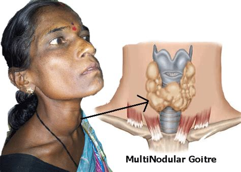 what is diffuse thyroid enlargement picture 3