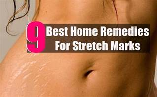 home remedies for stretch marks picture 13