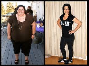 obesity weight loss picture 3