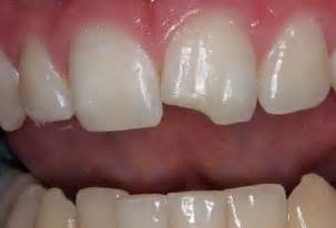 deep discolored teeth picture 5