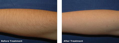 forearm hair removal picture 18