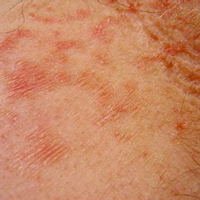 arthritis and skin problems picture 5