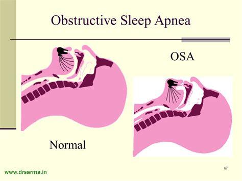 copd and sleep apnea picture 2