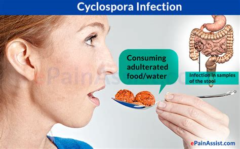 symptoms of intestinal infection picture 13