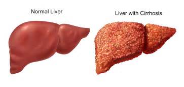 liver with cirrhosis picture 3