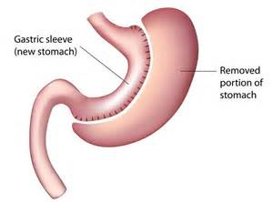 gastric intestinal surgery picture 5