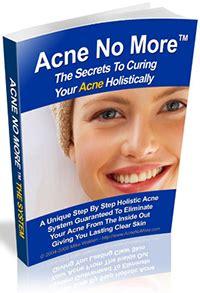internal treatment for acne dr bilques picture 10