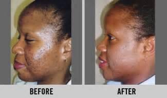 benefits of nadinola cream picture 9