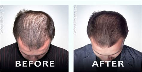 can taking the prescription drug levothyroxine result in hair loss picture 10