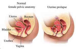 natural remedy for prolapsed uterus picture 1