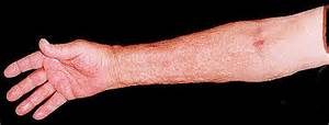 skin arm picture 13