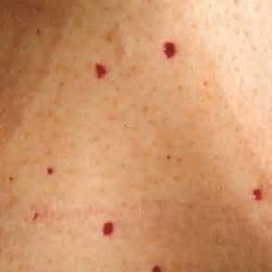 pin size blood spots on skin picture 6