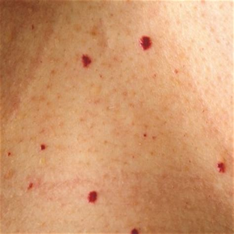 blood spots on skin picture 6