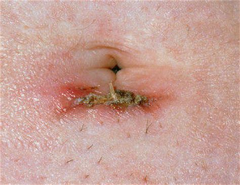 inflamed and painful penis after ing picture 16