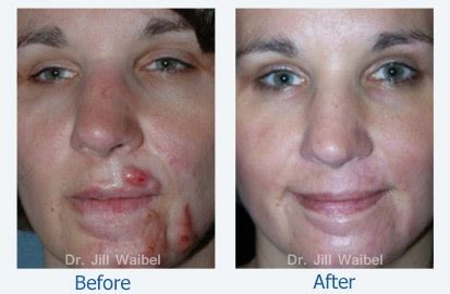 co2 laser for acne scars picture 14