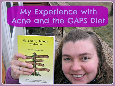 acne and diet picture 13