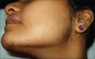 female facial hair acne picture 6