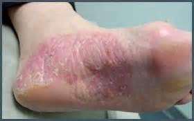 best treatment of itching & fungal infections in picture 9