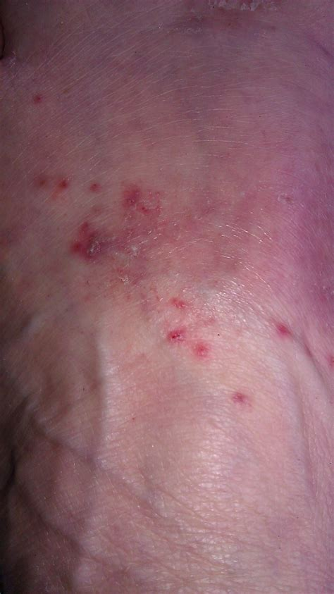 spots underneath skin picture 6