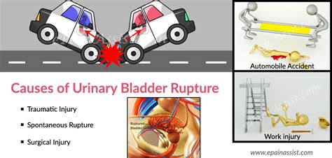 bladder injury urethra urine traumatic picture 2
