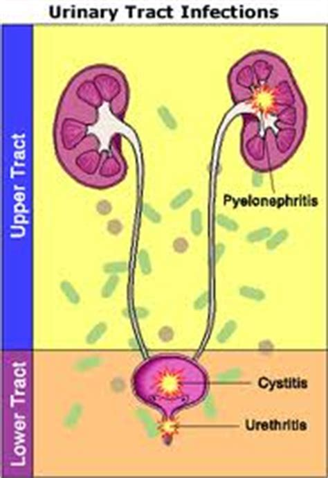 types of bladder infections picture 11