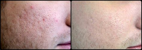 fraxel laser for acne scarring encino picture 3