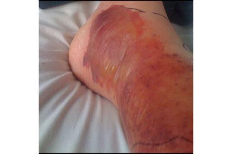 molescus bacterial skin rash picture 10
