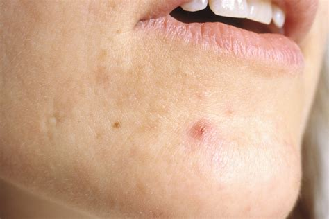 cysts heat acne picture 2