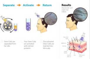 stem cell supplements for hair growth picture 21