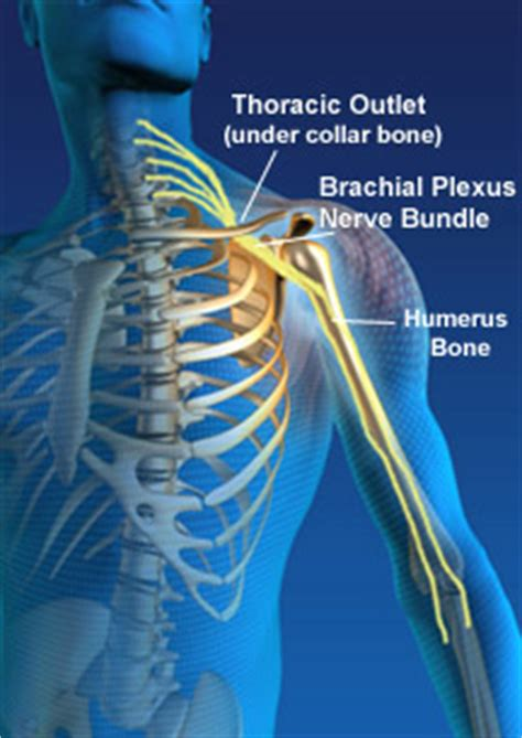 birth control and thoracic outlet syndrome picture 8