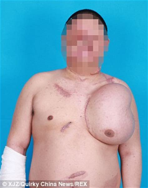 male saline breast infusion picture 1