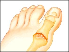 big toe joint pain picture 1