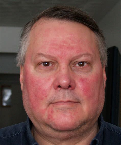 rosacea on face picture 6
