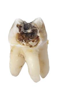 decayed teeth picture 11