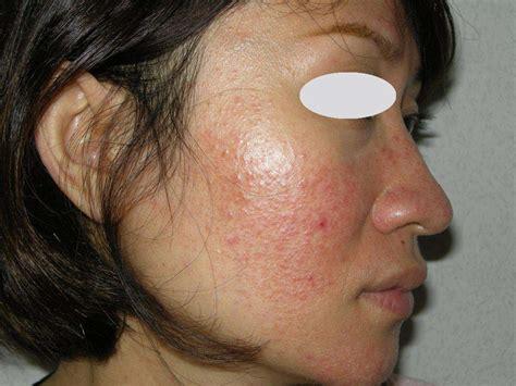 lupus acne picture 1