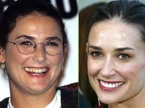 procedure straightens teeth on star picture 10