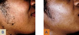 africa american lazer hair removal, houston, tx picture 10