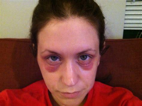 allergy in skin around eyes picture 2