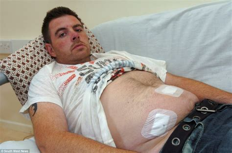 first bowel movement after ruptured appendix picture 4