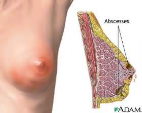 breast skin infections picture 10