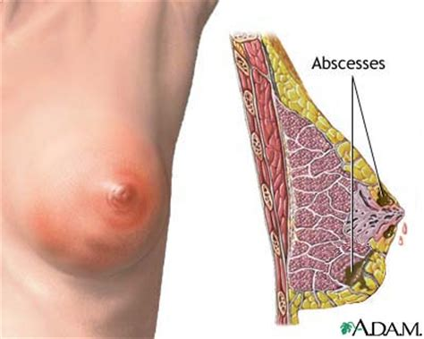 yeast infections in breasts picture 18