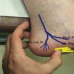 Calcaneal nerve branches