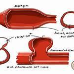 Pseudoaneurysm