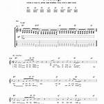 Underdogs (Manic Street Preachers song)