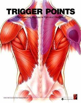 Trigger Points Massage & Sports Injury Clinic | Unit 1 Meadowfield Court Meadowfield Industrial Estate, Newcastle Upon Tyne NE20 9SD | +44 7870 427520