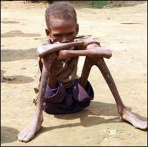 Image result for THIRD WORLD PEOPLE