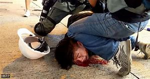 Image result for Chinese brutality in Hong Kong