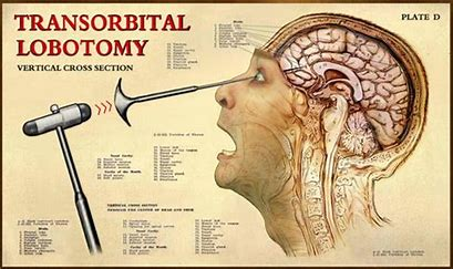 Image result for lobotomy pick images