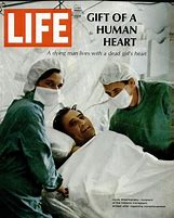 Image result for Dr. Christian Barnard, performed the first human heart transplant