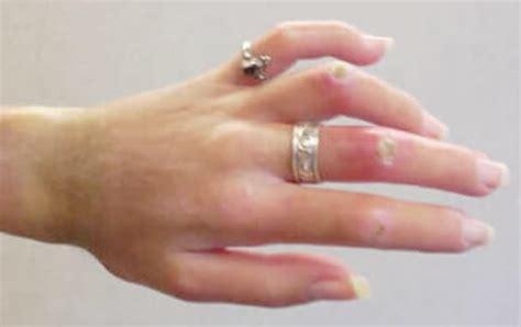 Image result for scleroderma digital ulcers